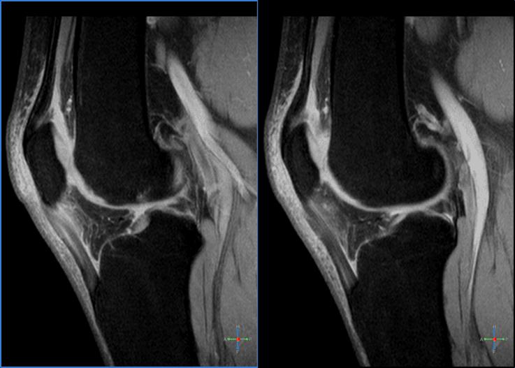 Sports Injury Patellar Tendinitis   El Paso, TX Chiropractor