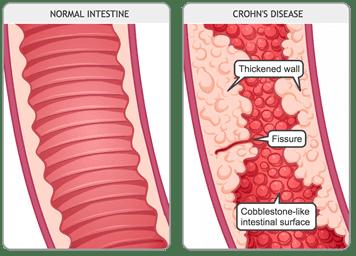 Crohns_disease_MED_ILL_EN