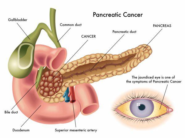 uspstf_pancreatic_cancer920.jpg.daijpg.600