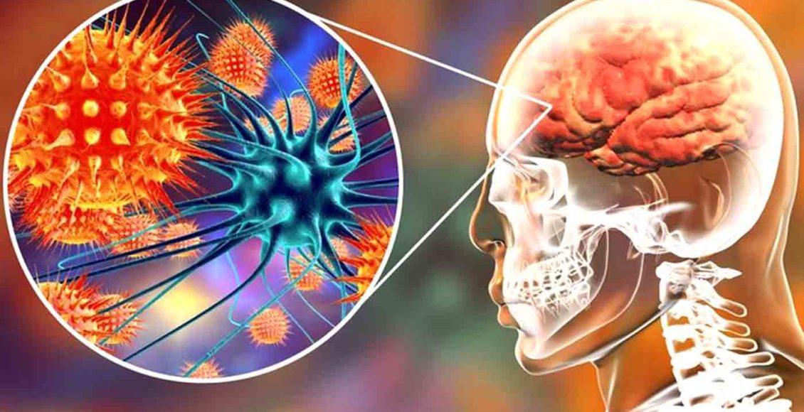 Neurología funcional: comprensión de la enfermedad cerebral autoinmune | El Paso, TX Quiropráctico